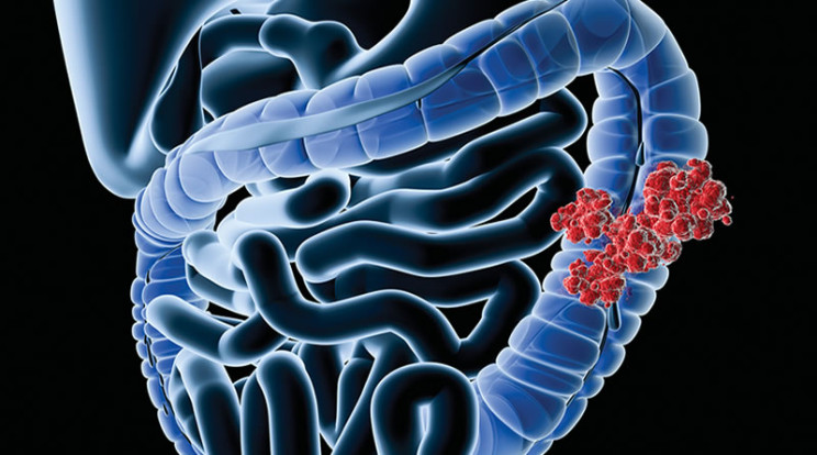 Рак ободочной кишки