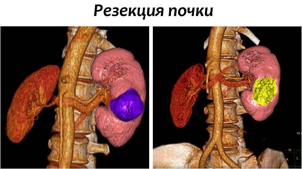 Рак почек у мужчин