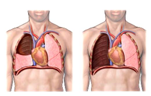 Лобэктомия и пневмонэктомия