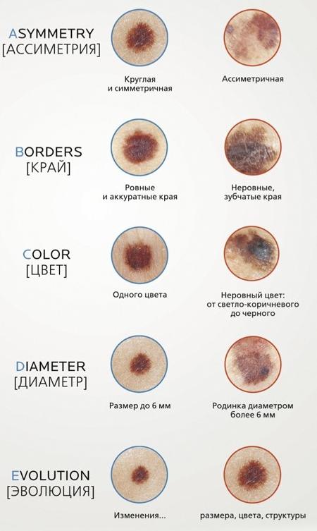 Меланома кожи - симптомы, фото, признаки, лечение, прогноз ...