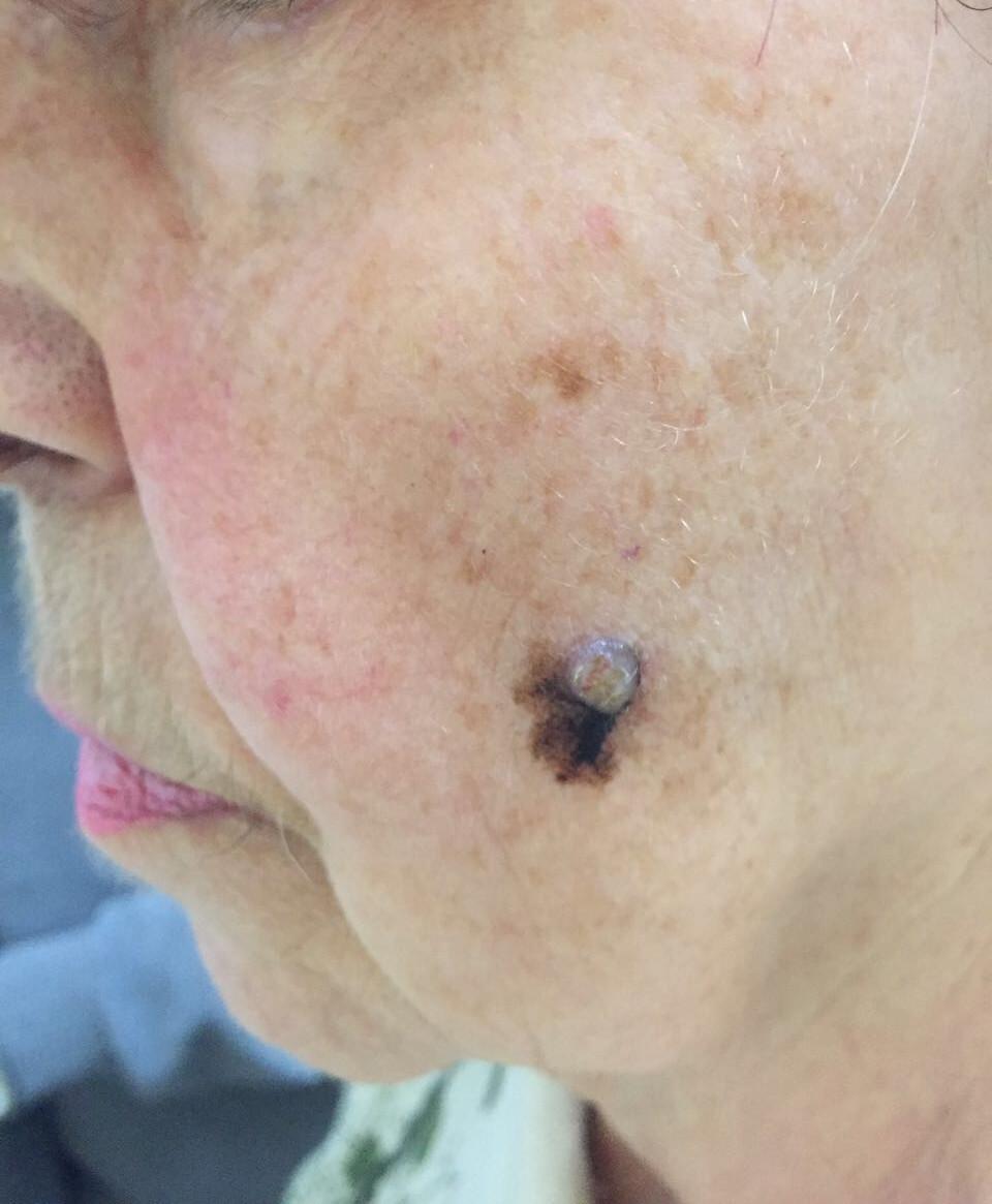 Что такое злокачественная меланома