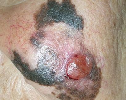 где чаще всего появляется меланома