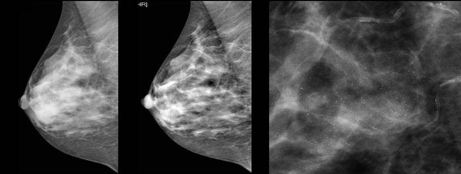 Как отличить мастопатию от рака молочной железы?