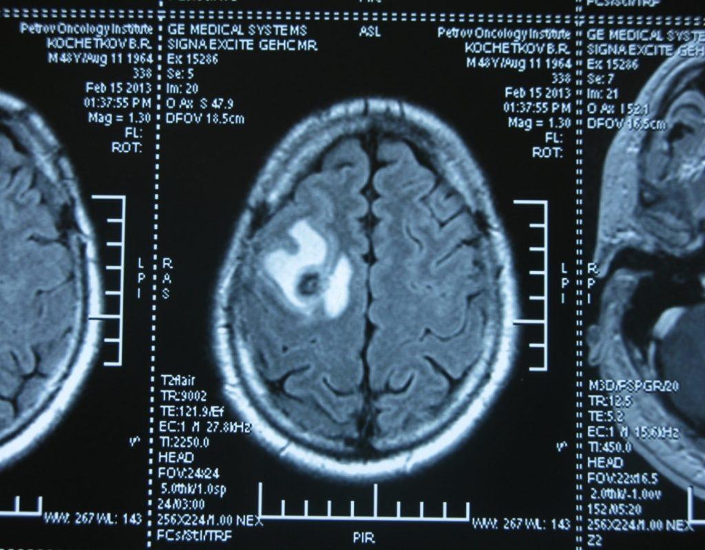 Метастаз в головной мозг при герминогенных опухолях (МРТ головного мозга)