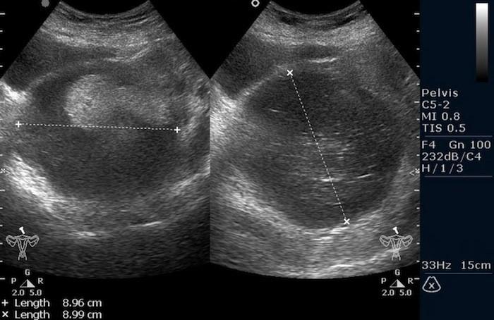 Тератома яичника (УЗИ малого таза)