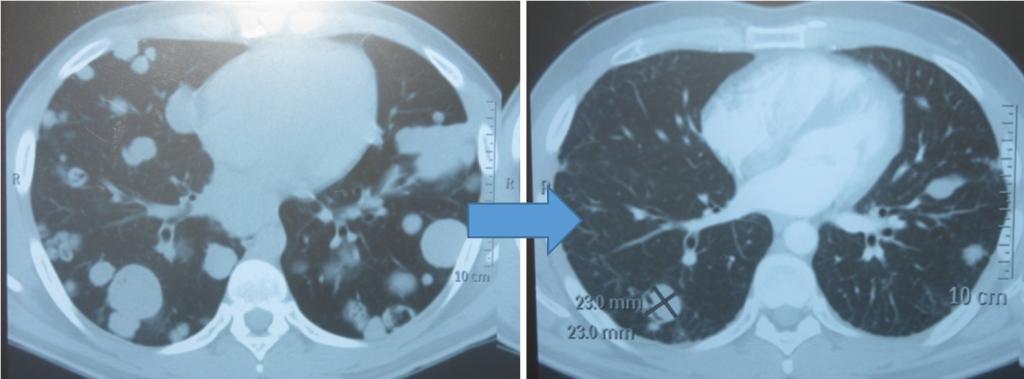 Метастазы в легких до лечения и после 4х циклов химиотерапии по схеме «ВЕР» (КТ грудной клетки)