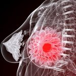 Причины и факторы риска развития рака молочной железы