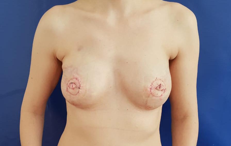 Фото реконструкции груди после мастэктомии