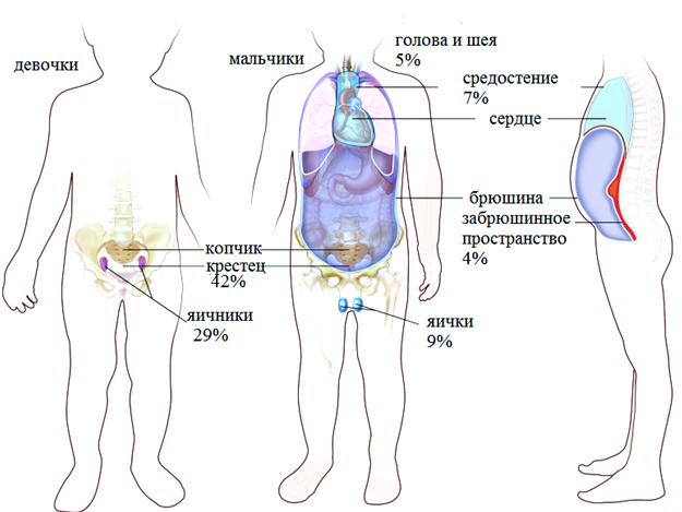 Рисунок 1. Варианты расположения герминогенных образований у детей.