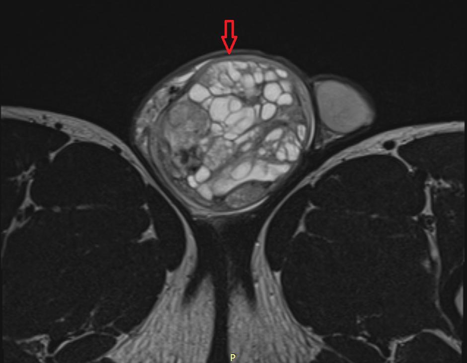 Семинома яичка на МРТ