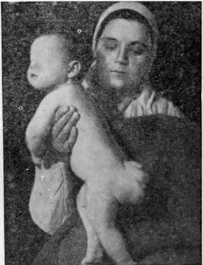 Крестцово-копчиковая тератома у ребенка.