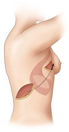 Одномоментная реконструкция, укрытие грудного имплантата с помощью LD Flap