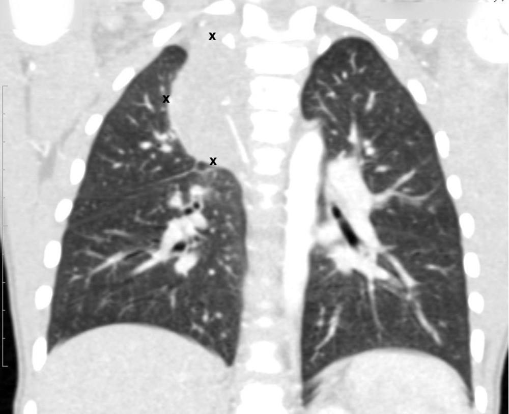 КТ органов грудной клетки – семинома средостения.