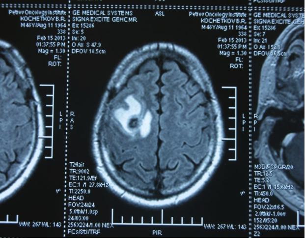 Метастаз в головной мозг при герминогенной опухоли