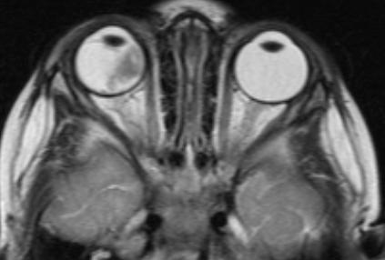 Визуализация ретинобластомы с помощью МРТ. Размеры образования соответствуют клинической группе D