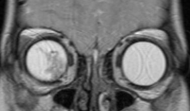 Визуализация ретинобластомы с помощью МРТ. Фронтальное изображение орбит. Клиническая группа D