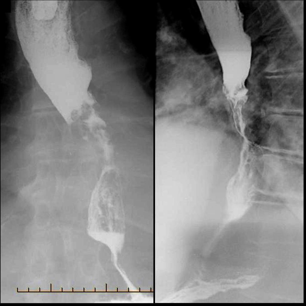 Рентгенодиагностика рака пищевода