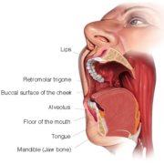 Меланомы слизистых оболочек головы и шеи