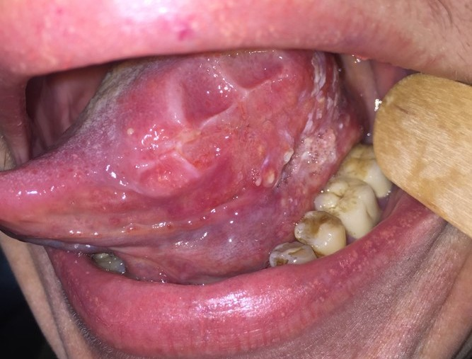 Рак языка: причины, симптомы, лечение и профилактика