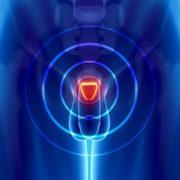 Рак предстательной железы: почему возникает, симптоматика, методы диагностики и лечения