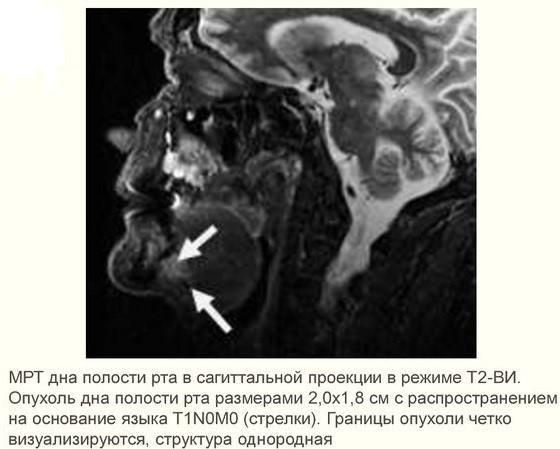 Рак полости рта: фото начальной стадии, симптомы, лечение и прогноз - Опухоли нет