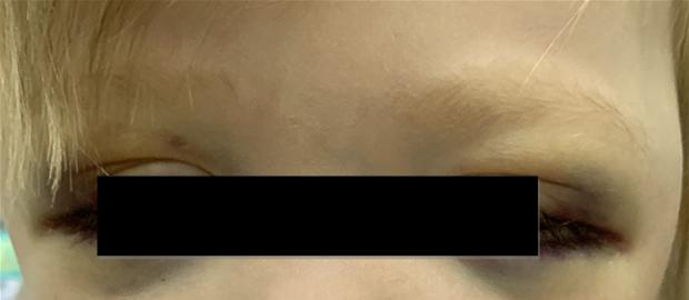 Рис. 3. Симптом «очков» при метастазах в орбиту