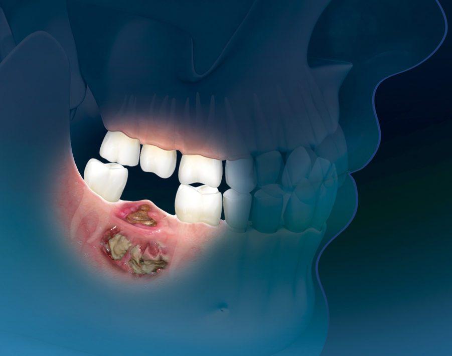 Плоскоклеточный рак нижней челюсти