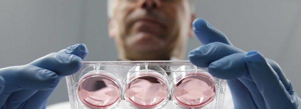 ЭКО и рак эндометрия