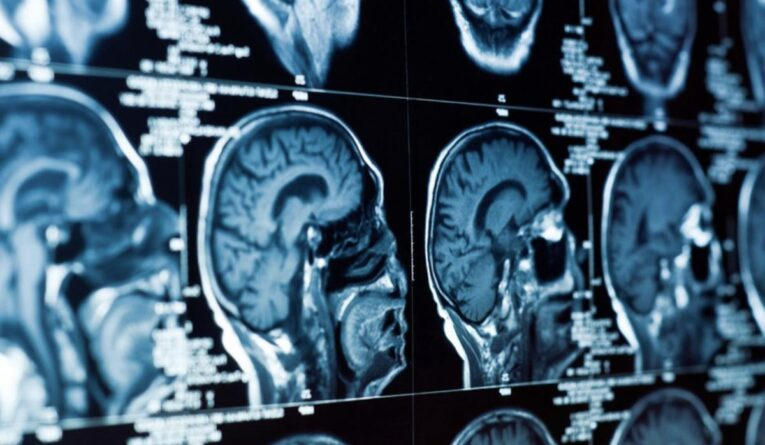 Диагностика опухолей слюнных желез