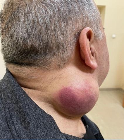 Плеоморфная саркома мягких тканей шеи справа