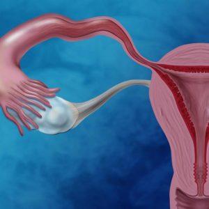 Рак эндометрия: факторы риска, диагностика, лечение, профилактика