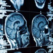 Злокачественные опухоли слюнных желез