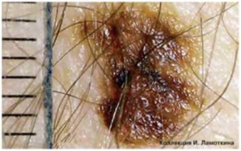 атипичные (диспластические) невусы