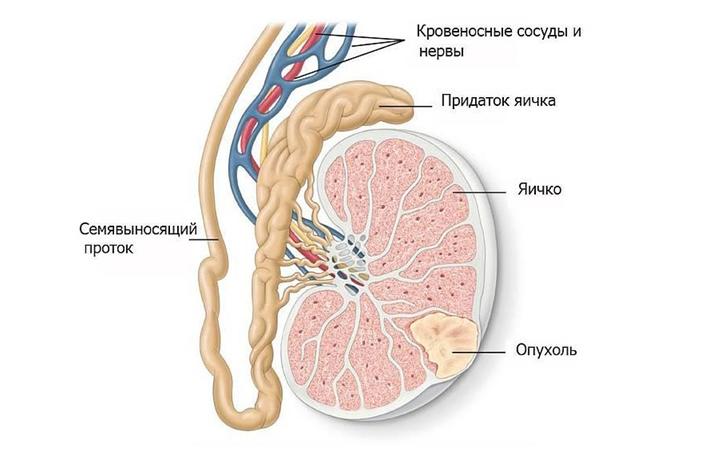 Опухоль в яичке