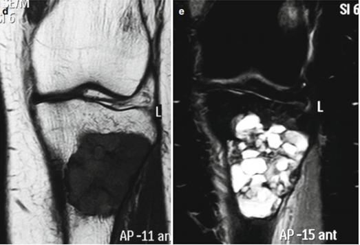 Рис.4: Компьютерная томография: визуализируются образования большеберцовой кости в виде гиподенсных масс, в которых прослеживается кистозная структура