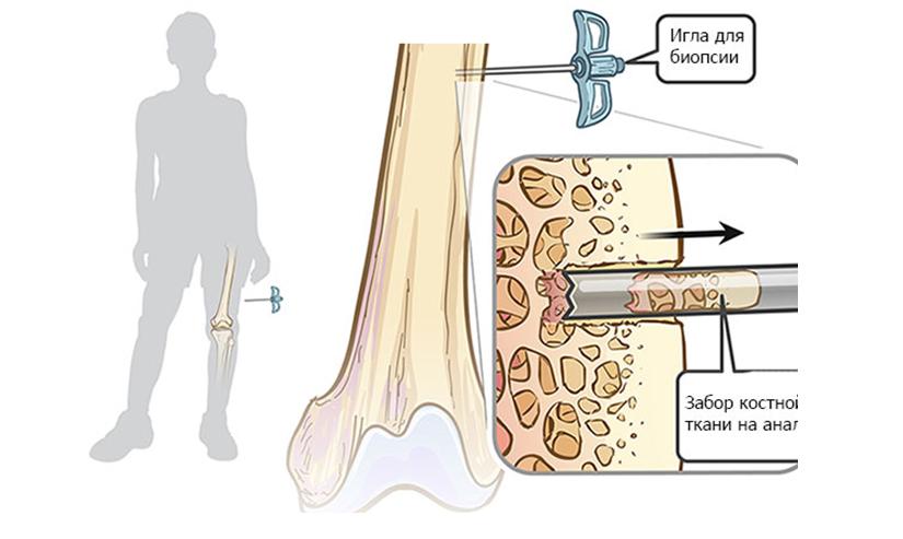 Рис.4: Биопсия с применением трепан-иглы