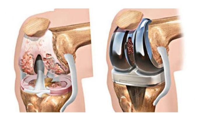 Рис. 5. Тотальное эндопротезирование коленного сустава состоит из трех компонентов: бедренного, большеберцового и надколенникового