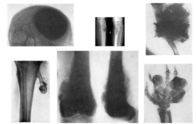 Рис.1: Варианты локализации остеосаркомы
