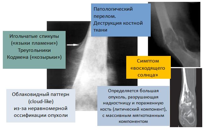 Рис. 2. Рентгенологические признаки остеогенной саркомы