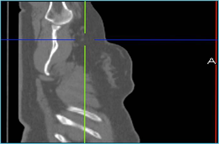 Рис. 1. Лучевая диагностика. Визуализация изменений морфологической структуры или анатомии