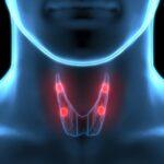 Лечение рака щитовидной железы в отделении опухолей головы и шеи